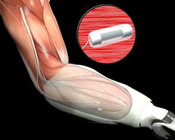 Nerve and Muscle Interfaces to Advance Prosthetic Control and Feedback