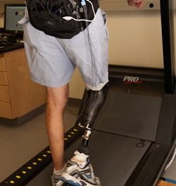 Technology Targets Prosthetic Discomfort in Amputees