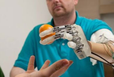 Bionic Technology Allows Amputee to Feel Objects