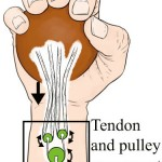 Pulley Mechanism May Hold Promise in Improving Lost Hand Function