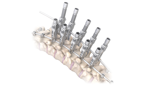 OrthoPediatrics Launches RESPONSE Spine System for Pediatric Scoliosis Patients