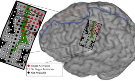 Mind-Controlled Prosthesis Moves Individual Fingers