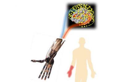 Study Provides New Insights Into Cause, Treatment of Phantom Limb Pain