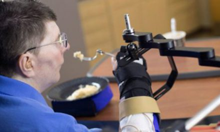 Study Spotlights First Recipient of FES System to Reanimate Limbs Using Thoughts
