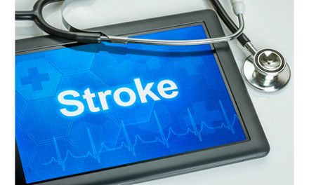 Aerobic Exercise Could Lessen Stroke Severity Later in Life