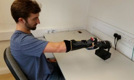 Size-Weight Illusion Not Felt as Strongly in Amputees Wearing Prosthetics