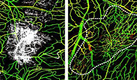 Immune Cells Kick in Post TBI to Assist with Injury Repair