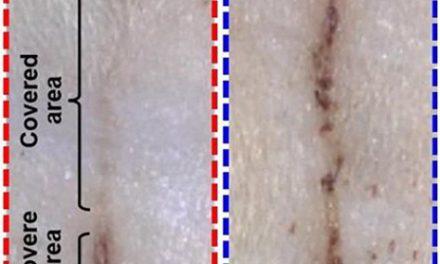 Self-Powered Bandage Aims to Stimulate Wound Healing