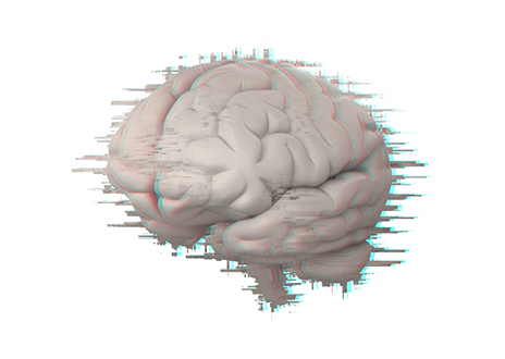 Addressing Cognitive Deficits is Also Important Post SCI, Researchers Suggest