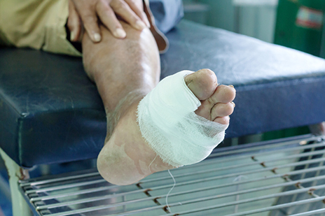 Fewer Amputations Seen in Foot Ulcers Treated with HBO Therapy, Study Suggests