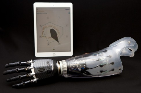 Pattern Recognition Prosthetic Reaches First U.S. Recipient