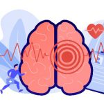 Who Fares Better After Stroke: Women or Men?